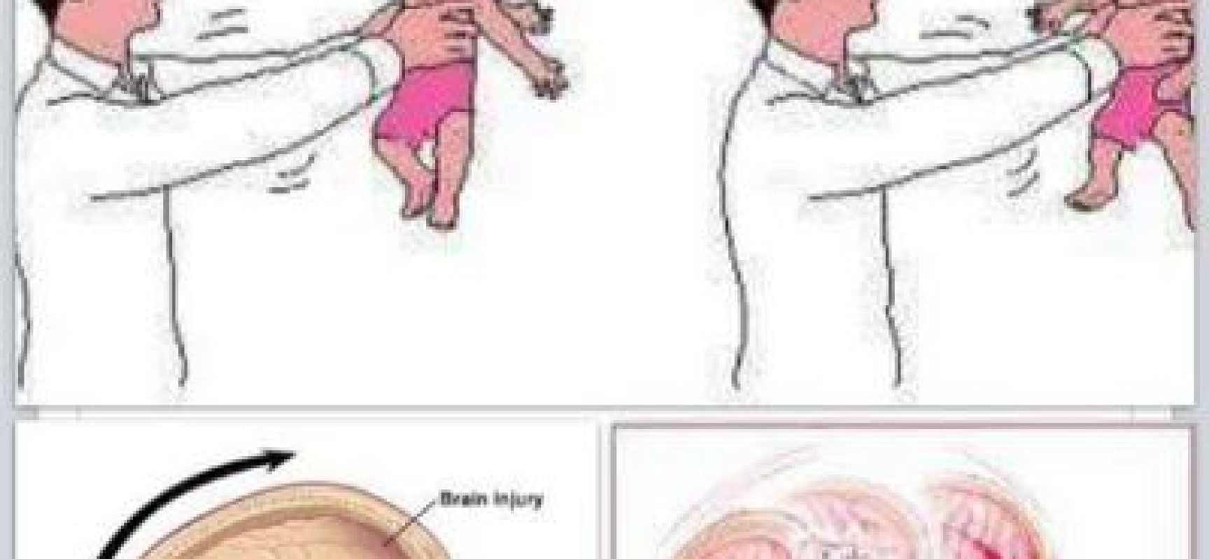 Shaking Babies Is Dangerous…Can Lead To Death