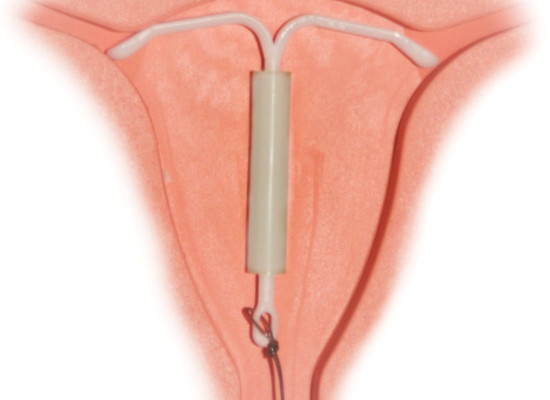 IUD Is Killing My Sex Life